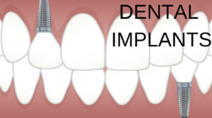 Dental Implants are the best alternative
