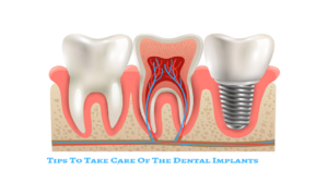 Simple Tips To Take Care Of The Dental Implants