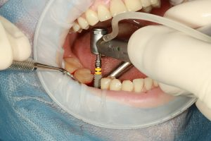 Learn More About The Different Dental Implants Available
