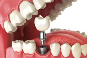 Dental Implants The Woodlands – The Best Treatment by The Leading Experts