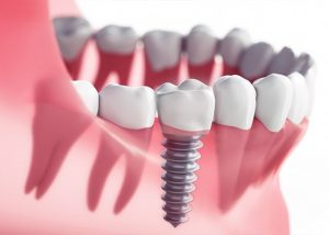 Instructions to Get Dental Implants To Last For Life