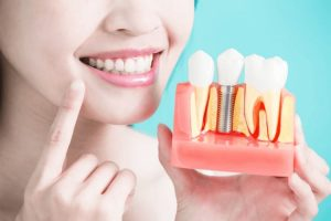 Do You Know How To Take Care Of Your Implant?